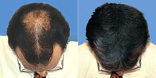 Камуфляж для волос