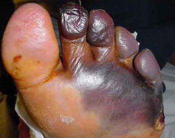 Боли в ногах бедра сахарный диабет