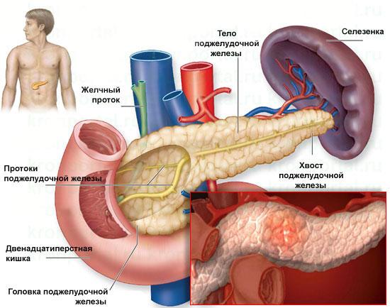 Лечение панкреатита в домашних условиях 45