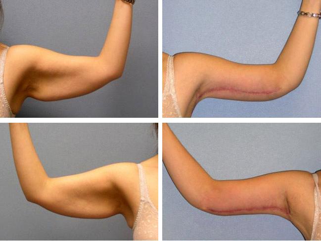 Упражнения подтянуть кожу после похудения в домашних условиях