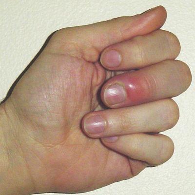 Воспаление под ногтями на руках