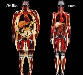 Упражнения планка для начинающих для похудения