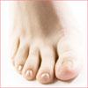 Потеют ноги? Средства народной медицины для устранения неприятного запаха