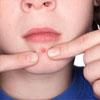 Прыщи на лице? Косметолог поможет определить, чем вы больны