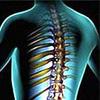 «Осевший» позвоночник – невидимая причина наших болезней