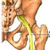 Как лечить воспаление седалищного нерва?