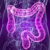 Как худеть на пробиотиках? Микробы и бактерии против лишнего веса!