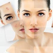 Как добиться ровного цвета лица? Лечение сосудистых сеточек лазером