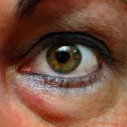 «Мешки» под глазами – причины появления и способы избавления