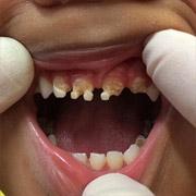 Почему приходится удалять детские молочные зубы?
