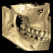 Сделать 3D-снимок зубов в Москве