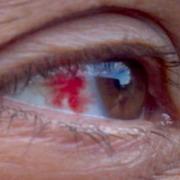 Тромбоз сетчатки глаза. Болезнь, которая опасна для жизни?