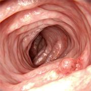 Главный рубеж защиты здоровья ЖКТ - это слизистая оболочка кишечника!