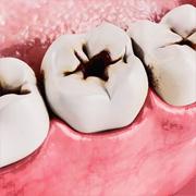 Проблема с зубами! Срочно устранить!